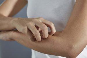 frau mit staublaus allergie kratzt sich